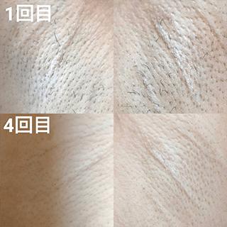 美肌脱毛before&after